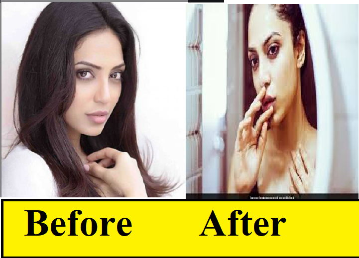 Sobhita-dhulipala-before-and-after-plastic-suegery